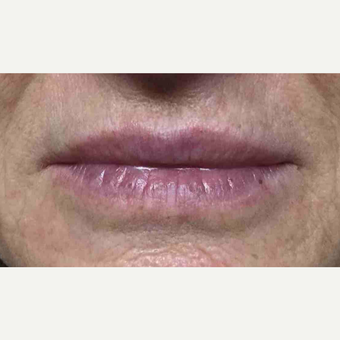 55-64 year old woman had lip augmentation with Restylane after 3169207