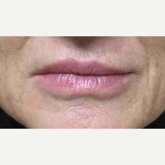 55-64 year old woman had lip augmentation with Restylane before 3169207