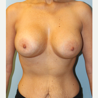 25-34 year old woman treated with Breast Implants after 3106689
