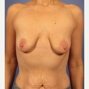 25-34 year old woman treated with Breast Implants before 3106689