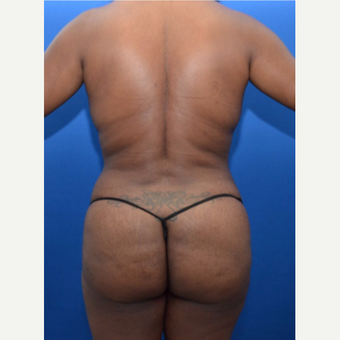 Laser Liposuction Surgery with Fat Transfer