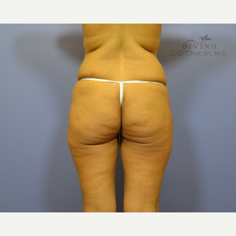 35-44 year old woman treated with Liposuction before 3421393