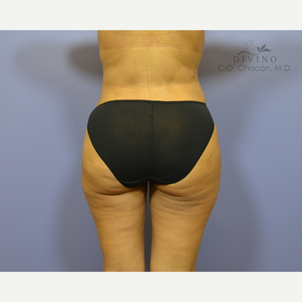 35-44 year old woman treated with Liposuction after 3421393