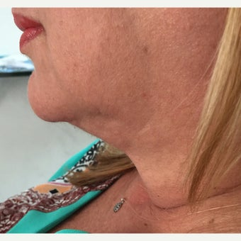 52 year old woman treated with Kybella for improve apperance of submental fat before 2033487