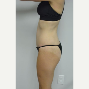 35-44 year old woman treated with Tummy Tuck and liposuction of her flanks and lower back after 3458999