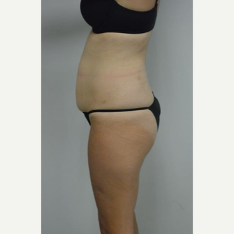 35-44 year old woman treated with Tummy Tuck and liposuction of her flanks and lower back before 3458999