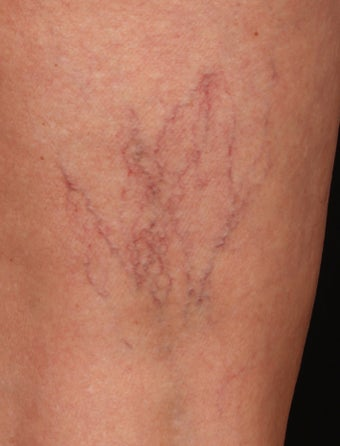 Sclerotherapy for Spider Veins before 1356066