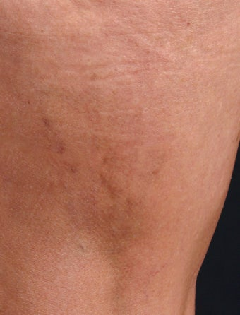 Sclerotherapy for Spider Veins after 1356066