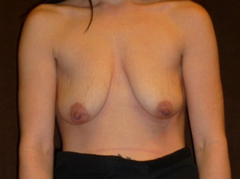 34 Year Old Female Treated for Small, Saggy Breasts