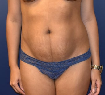 35-44 year old woman treated with Tummy Tuck before 3348762