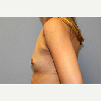 25-34 year old woman treated with Breast Augmentation before 3570057