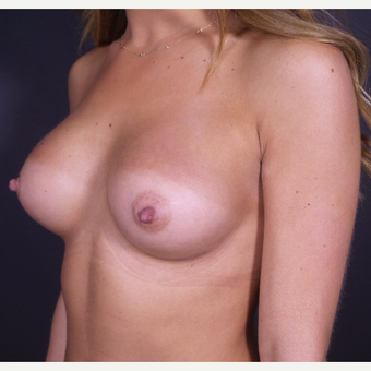 Breast Augmentation with Shaped Silicone Implants after 3059032