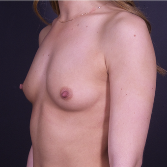 Breast Augmentation with Shaped Silicone Implants before 3059032