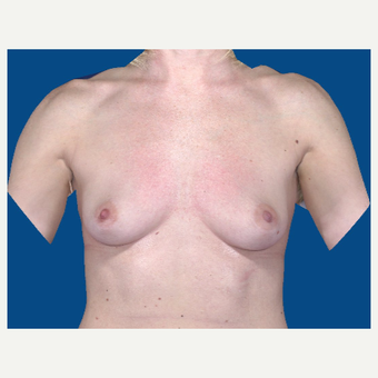 35-44 year old woman treated with Breast Augmentation before 3103842
