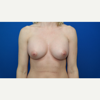 35-44 year old woman treated with Breast Augmentation after 3103842