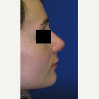 Rhinoplasty after 2994570