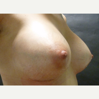 25-34 year old woman treated with Breast Implants after 3795989