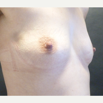 25-34 year old woman treated with Breast Implants before 3795989
