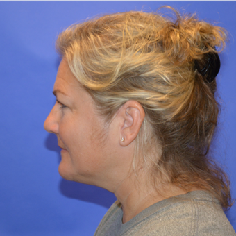 45-54 year old woman treated with Kybella after 3579721