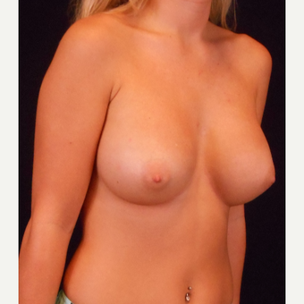 18-24 year old woman treated with Breast Augmentation after 3525894