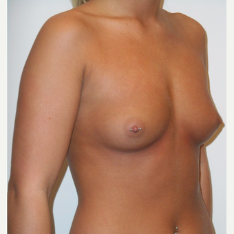 18-24 year old woman treated with Breast Augmentation before 3525894