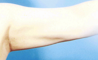 Arm Liposuction after 652121