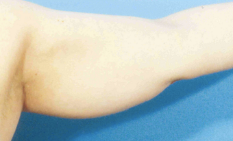 Arm Liposuction before 652121