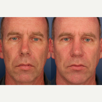 35-44 year old man treated with Rhinoplasty and chin implant after 3698953