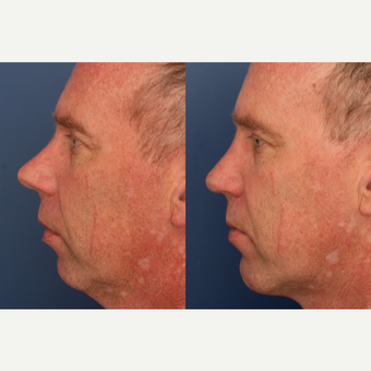 35-44 year old man treated with Rhinoplasty and chin implant before 3698953