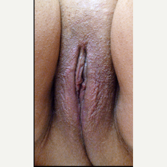 35-44 year old woman treated with Vaginal Rejuvenation after 3146918