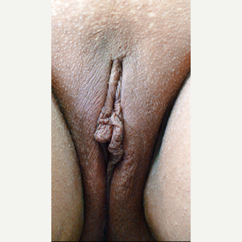 35-44 year old woman treated with Vaginal Rejuvenation before 3146918