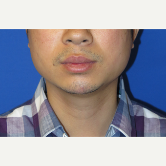 33 year old man treated with Chin Implant before 3384749