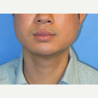 33 year old man treated with Chin Implant after 3384749