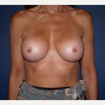 45-54 year old woman treated with Breast Augmentation after 3287411