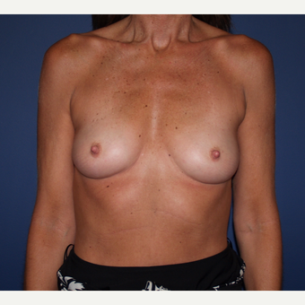 45-54 year old woman treated with Breast Augmentation before 3287411