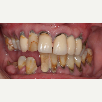 35-44 year old woman treated with All-on-4 Dental Implants before 3768330