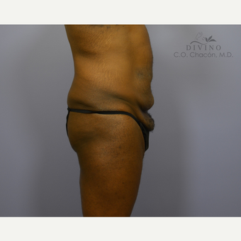 45-54 year old man treated with Panniculectomy before 3421682
