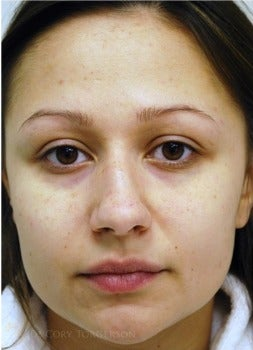 25-34 year old woman treated with Rhinoplasty before 3259925