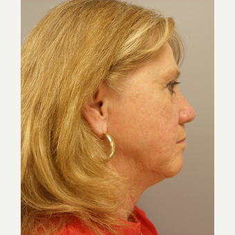 55-64 year old woman treated with Facelift before 3109397