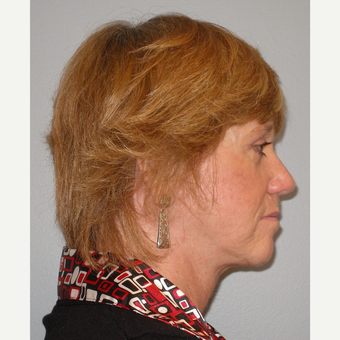 55-64 year old woman treated with Facelift after 3109397