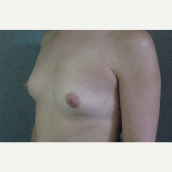 35-44 year old woman treated with Breast Fat Transfer before 1821363