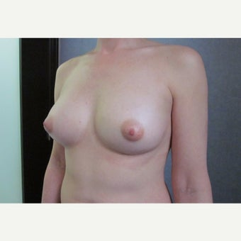 35-44 year old woman treated with Breast Fat Transfer after 1821363