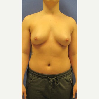 18-24 year old woman treated with Breast Augmentation before 3148311