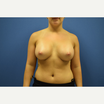 18-24 year old woman treated with Breast Augmentation after 3148311