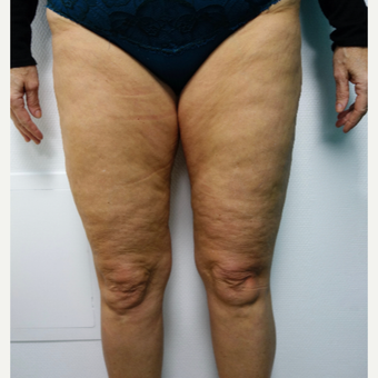 45-54 year old woman treated with Thigh Lift before 3031312