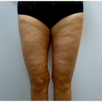 45-54 year old woman treated with Thigh Lift after 3031312