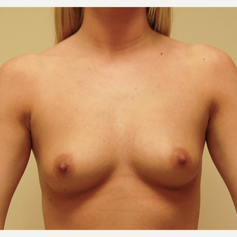 25-34 year old woman treated with Breast Augmentation before 3287712