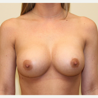 25-34 year old woman treated with Breast Augmentation after 3287712