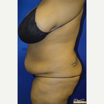 35-44 year old woman treated with Tummy Tuck before 3576546