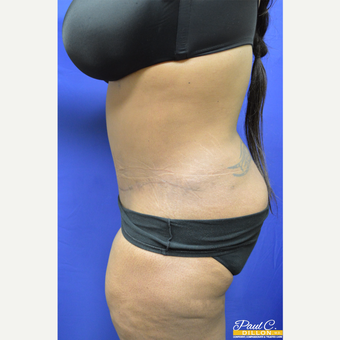 35-44 year old woman treated with Tummy Tuck after 3576546